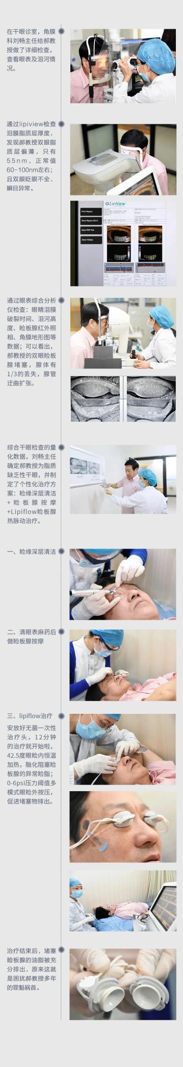 眼睛干痒、眼睛委靡、眼睛除螨虫、眼睛干燥,看眼科专家若何治疗干眼症